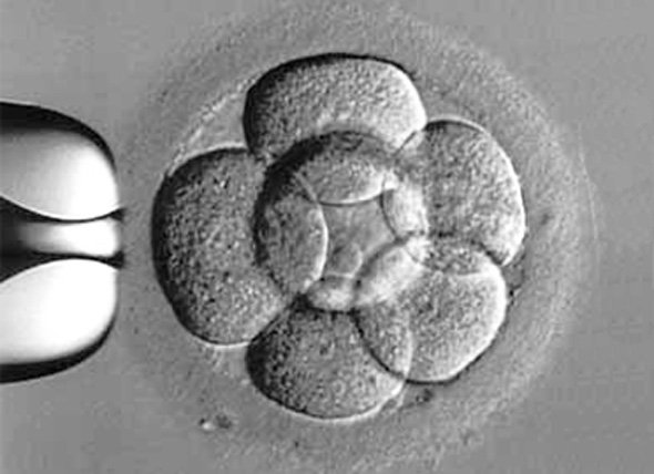 Eight Cell Embryo